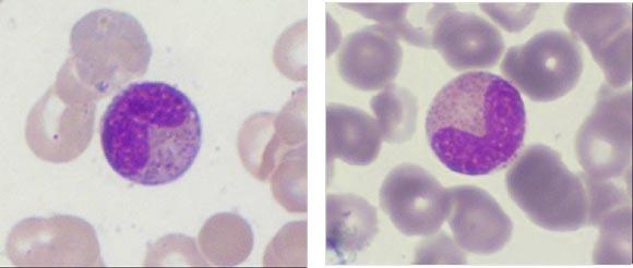 Meta Myelocytes Related Keywords & Suggestions - Meta ...